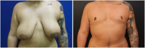 top-surgery-female-to-male-before-after-1-1
