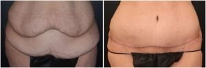 tummy-tuck-before-after-3